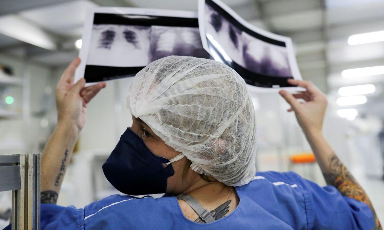 _radiografia_de_torax_coronaviruscovid-19_hospital_sao_paulo1205200325